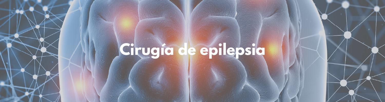 Cirugía de epilepsia - Fundación Clínica del Norte