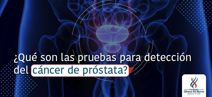 mastitis el cáncer de próstata causa dolor de espalda